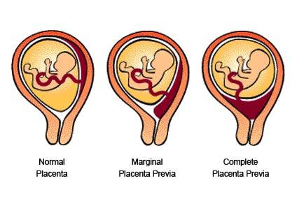Placenta Previa Pic.jpg